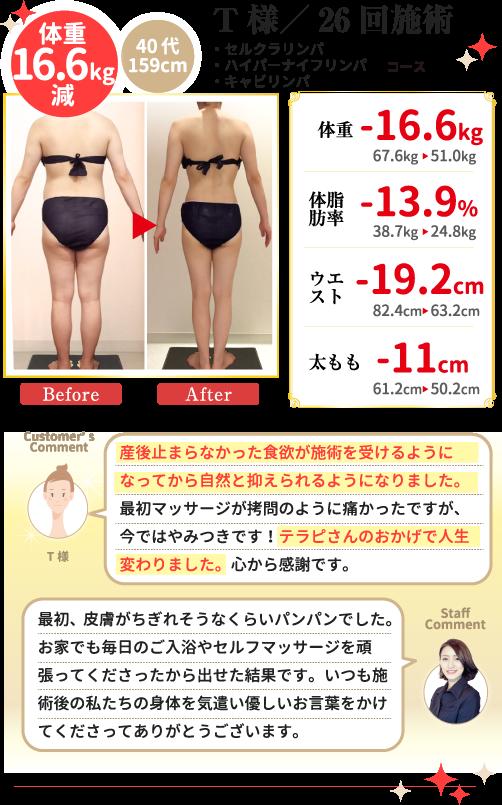 T様/26回施術 40代 159cm 体重16.6kg減 ・セルクラリンパ・ハイパーナイフリンパ ・キャビリンパ コース 体脂肪率-13.9% ウエスト-19.2cm 太もも-11cm (お客様コメント)産後止まらなかった食欲が施術を受けるようになってから自然と抑えられるようになりました。最初マッサージが拷問のように痛かったですが、今ではやみつきです!テラピさんのおかげで人生変わりました。心から感謝です。(スタッフコメント)最初、皮膚がちぎれそうなくらいパンパンでした。お家でも毎日のご入浴やセルフマッサージを頑張ってくださったから出せた結果です。いつも施術後の私たちの身体を気遣い優しいお言葉をかけてくださってありがとうございます。