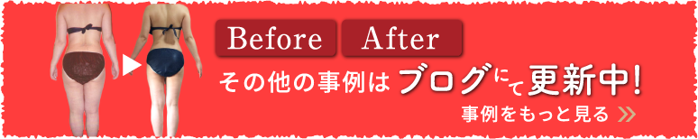 BeforeAfter その他の事例はブログにて更新中!事例をもっと見る